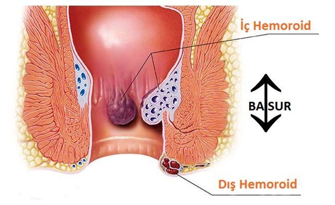 Hemoroid (Basur) Tedavisi