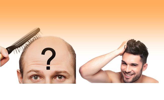 Saç Ektirmenin Sağlığa Zararı Var mı?