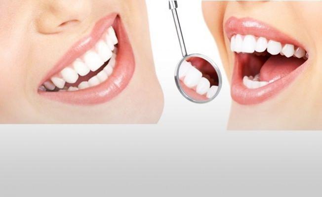 Sağlıklı Diş Beyazlatma Yöntemleri